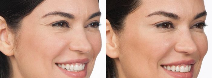 botox-cynthia_side_before-after